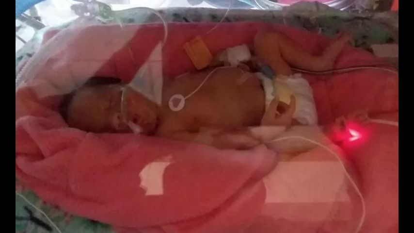 Doctors save baby before pregnant woman dies after car crash